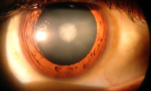 1280px-Cataract_in_human_eye